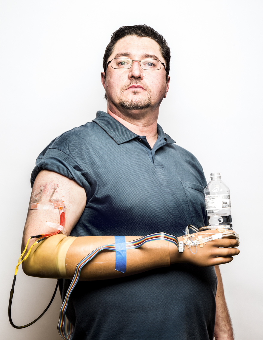 Portrait of man with neural implant to control robotic arm for amputated arm.